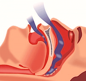 Surgical Procedures for Snorers