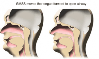 How the GMSS Moves Tongue
