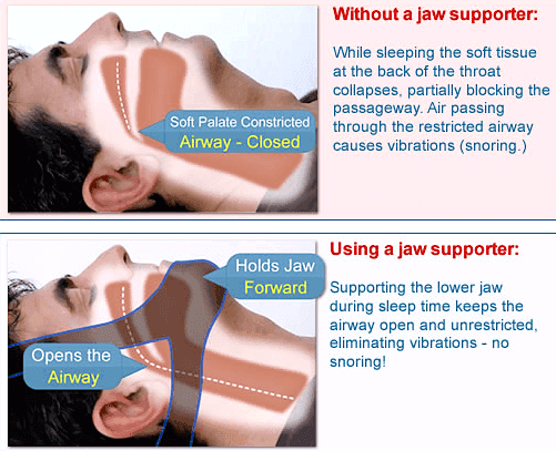 How Anti-Snoring Chinstrap Works
