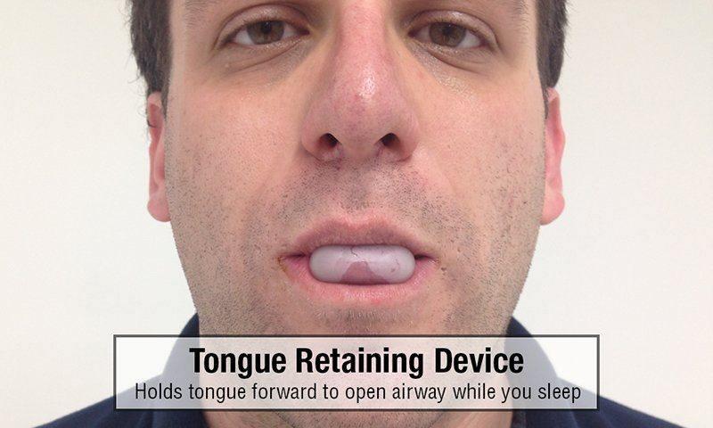 Tongue Retaining Device TRD Snoring