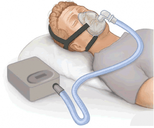 cpap equipment sketch
