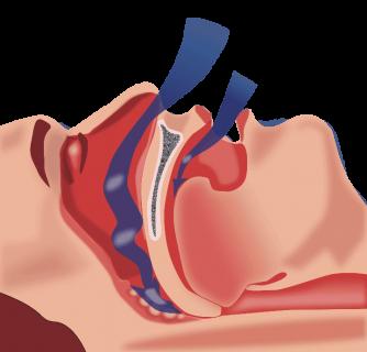 how nasal cones work