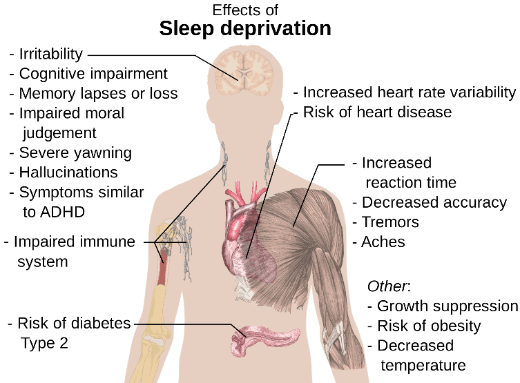 sleep deprivation chart