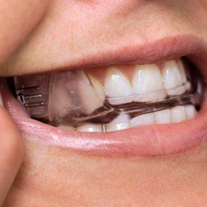 custom oral appliances